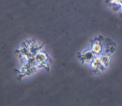 iPS細胞から作製した樹状細胞(和歌山県立医大提供)