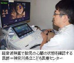 胎内で診断、救命可能に子どもの重い心臓病重要な家族のケア