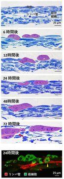 弘大で卵巣がん治療薬へ前進