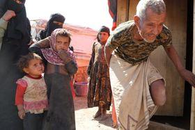 国連からの支援が半年に一度しか届かない国内避難民キャンプ。サーダで空爆に遭い片足を失ってしまった老人。2年以上キャンプ暮らしが続いていて、病院に行くこともできない