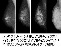 マンモの課題、克服なるか40代の精度高める研究超音波追加、乳がん検診