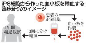 iPS細胞から作った血小板を輸血する臨床研究のイメージ