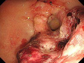 画像1・胃がんの内視鏡画像。出血を伴った潰瘍を認める
