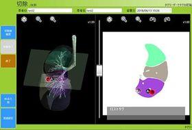 がん部位のそばにチップを挿入した肺のモニターのイメージ(株式会社ホギメディカル提供)
