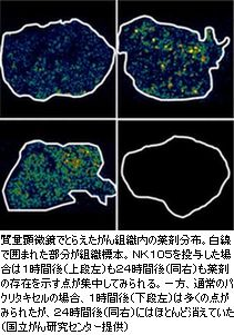 がんに集まる薬を画像化国立がん研究センター成功