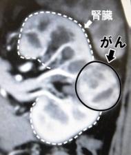 直径約3センチのがんができた腎臓のCT検査画像