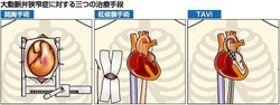 (3)心臓弁膜症の外科治療 心臓病センター榊原病院心臓血管外科部長 都津川敏範