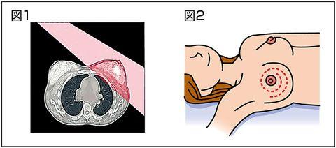 乳がん 早期発見には検診重要 月に1度自己チェックを