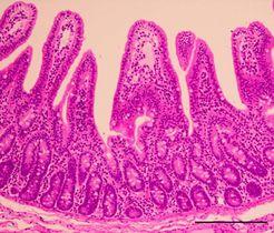 ワクチンの接種で浮腫病が発症せず、腸管の表面の絨毛(細かい突起)が破壊されない(ジェクタス・イノベーターズ提供)