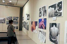 カネミ油症の被害の実態を伝える写真展(京都市下京区・ひと・まち交流館京都)