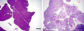 脱分化を起こしてもがんができなかった遺伝子に異常のないマウスの膵臓(左)と、がんができた、遺伝子に異常があるマウスの膵臓(京都大iPS細胞研究所提供)