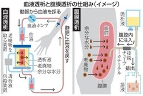 透析方法「腹膜」も視野に 自分で操作、高い自由度 生活にあった選択を