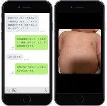 通信アプリを使った医師と保護者のやりとりの一例(左)と乳児の画像の一例