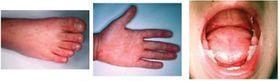 (資料写真)手足口病の症状。手、足、口内に米粒大の発疹ができる(国立感染症研究所感染症疫学センター提供)