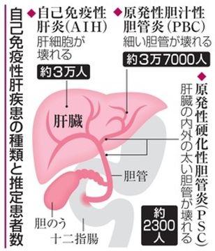 肝臓の難病、患者増える 免疫系が自分を攻撃 相談で正しい情報得て