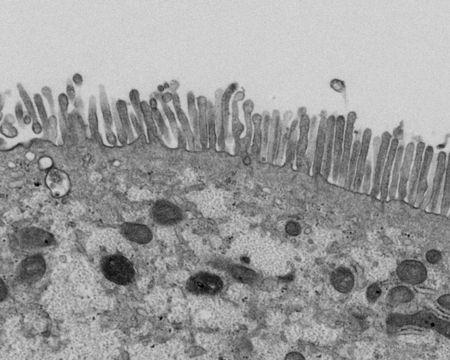 阪大、iPSで小腸上皮細胞作製