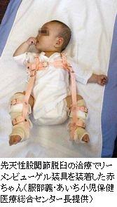 乳児股関節脱臼を見逃すな 診断遅れで治療難航 健診体制の再構築を