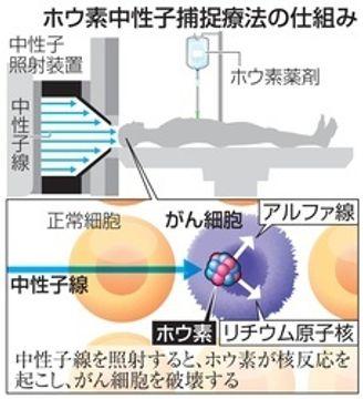 液体のり成分で効果向上 がん放射線治療に新手法