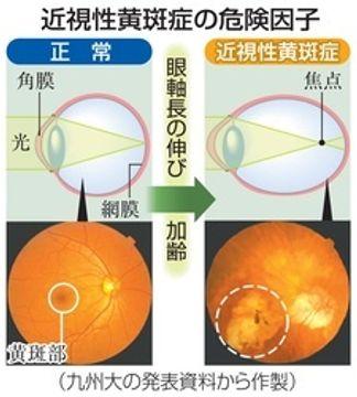 矯正できない「病的近視」 日本人で高い発症率判明 検査と受診継続が大切