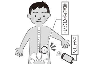 脳卒中後遺症の新治療で、介護の負担軽減 沖縄県医師会編「命ぐすい耳ぐすい」