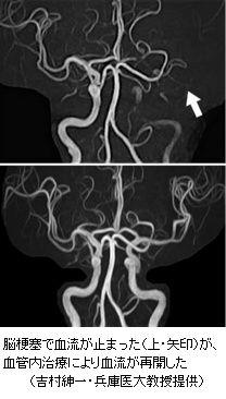 進歩する脳梗塞治療カテーテルで血栓除去受診早いほど効果